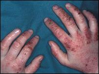 Eczema sufferer