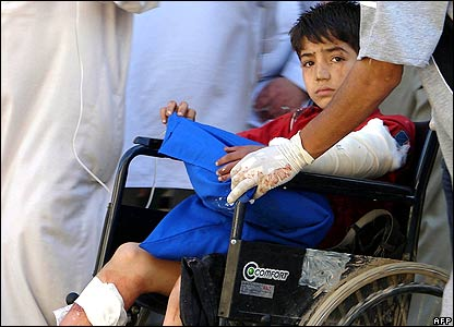 A young boy injured in the attack
