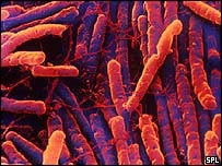 Microscope view of clostridium difficile