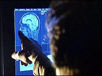 Imagen del cerebro humano