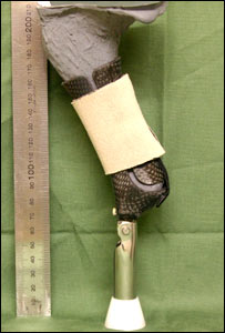 The prosthetic limb (Peter Allen)