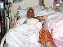 Captain Chuck Ziegenfuss in hospital (Photo courtesy of Chuck Ziegenfuss)