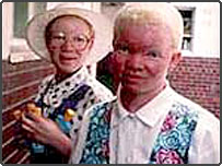 Two girls with albinism in Zimbabwe