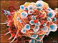 Breast cancer cell (Picture: Steve Gschmeissner)