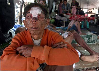 Injured in field hospital