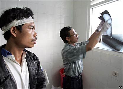 A doctor looks at an X-ray for the injuries of an earthquake victim near Bantul, , Indonesia, Monday, May 29, 2006, in Bantul, Indonesia.