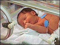 Premature baby in an incubator