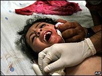 طبيب يعالج طفلة جريحة من جراء حادث شاطئ غزة الجمعة