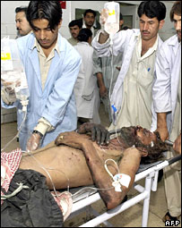 Doctors move a blast victim at a hospital after an explosion in Quetta