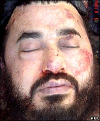 Picture of the dead Zarqawi released by the US defence department