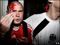 A Polish fan is helped by a German fan after clashes with police in Dortmund
