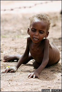 Malnourished child at Wajir District hospital in Kenya