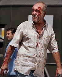 Injured man walks from scene