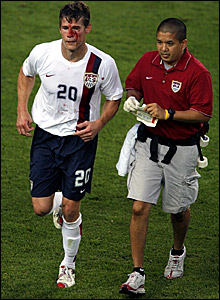 Brian McBride leaves the pitch for attention to his bloodied face