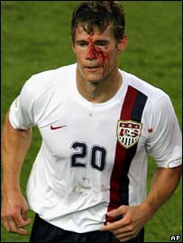USA striker Brian McBride bleeds after Daniele De Rossi's horror challenge