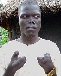 LRA victim, Ochola John