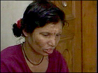 Female acid attack victim