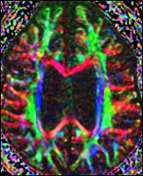 DTI brain scan (Weill Cornell Citigroup Biomedical Imaging Center/H Voss)