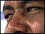 Fabián Cataño, un colombiano que resultó herido en los atentados del 7 de julio