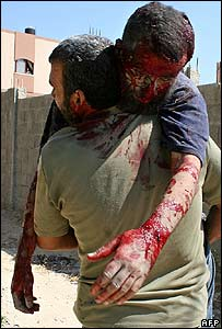 Palestinian carries injured man after Israeli shelling of Beit Lahiya