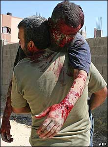 A Palestinian man carries a badly injured man after Israeli artillery shelling in Beit Lahiya
