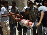 فلسطينيون يحملون شابا اصيب بجروح بالغة في غزة