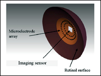 Retinal prosthesis schematic