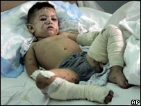 Injured child in Nabatiyeh hospital
