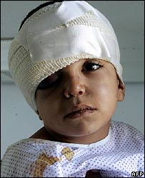 Three-year-old Issam Mostafa in hospital in Bekaa Valley, Lebanon, injured in Israeli air raid