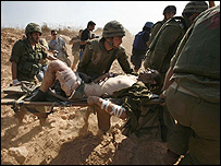 جندي إسرائيلي اصيب في الاشتباكات