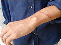 wrist wound