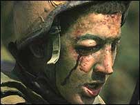 Injured Israeli soldier
