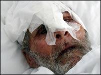 Injured Lebanese man in Tyre