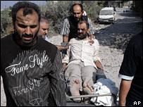 Injured Qana man