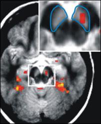 MRI scan of brain (UCL)