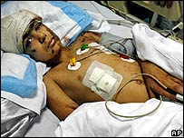 Lebanese Hussein Rmeity, aged nine, on 8 August 2006 after overnight Israeli air raids on Beirut