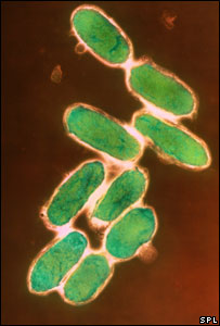 Yersinia pestis (plague) bacteria (Image: Barry Dowsett/Science Photo Library)