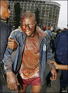 A wounded man is led away from the fighting in Kinshasa on 21 August 2006