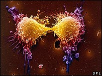 Cancer cells dividing - copyright Steve Gschmeissner/SPL