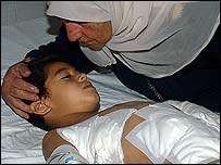 Abbas Yussef Abbas, 6, in hospital after cluster bomb exploded in Nabatiyeh 30 August