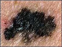 image of malignant melanoma
