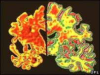Alzheimer's brain (l) compared to normal brain (r) (Science Photo Library)
