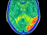 Brain scan of someone who has had stroke