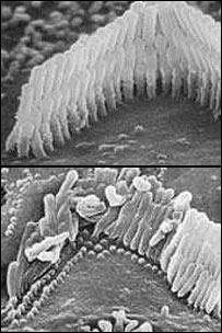 Células ciliares en el oído humano.