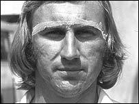 John Lever wearing the gauze strips