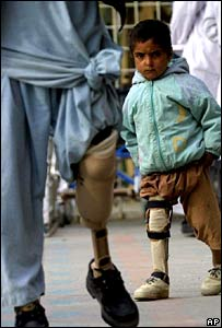 Child with prosthetic limb in Afghanistan (archive photo)