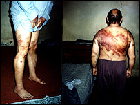 The back and legs of an Iraqi who was allegedly tortured by the Iraqi police
