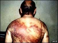 Hombre supuestamente torturado por la policía en Bagdad.