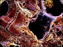 Liver cell with cirrhosis