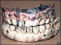 The 200-year-old teeth